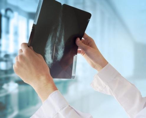 esmo 2016 breast cancer ribociclib palbociclib abemaciclib data medipaper medicall writer