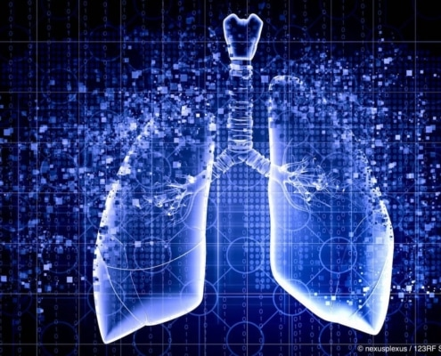 Making sense of immunotherapy in NSCLC