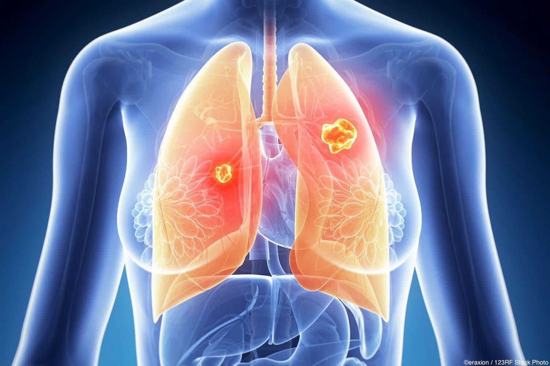 ASCO 2018 nsclc immunotherapy ASCO18 lung cancer pembrolizumab avelumab nivolumab duravalumab ipilimumab osimertinib dacomitinib lorlatinib crizotinib alectinib keytruda KEYNOTE CheckMate JAVELIN IMpower