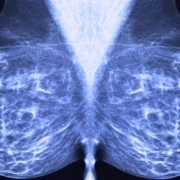 Early breast cancer treatment in China remains conservative