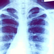 Brigatinib prolongs PFS compared to crizotinib in ALK-Positive NSCLC