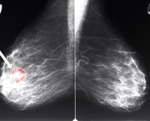ADDING RIBOCICLIB TO FULVESTRANT IMPROVES THE SURVIVAL OF ADVANCED BREAST CANCER PATIENTS MONALEESA-3