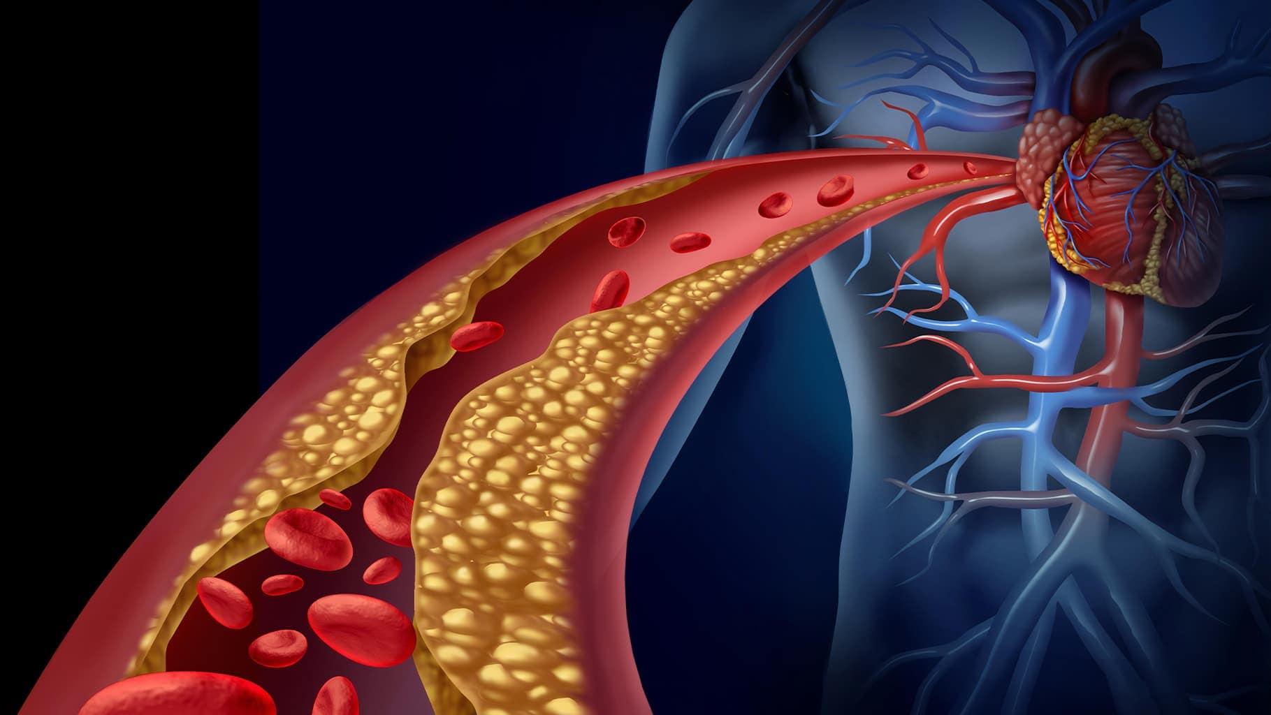 data-for-safe-and-effective-use-of-evolocumab-in-paediatric-familial-hypercholesterolaemia